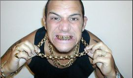 Gold_teeth